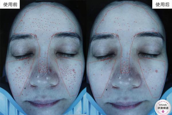 改善皮肤纹理情况