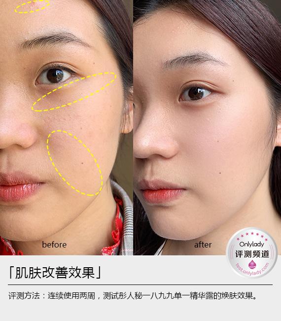肌肤改善效果-ok